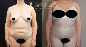 addominoplastica donna 70 anni