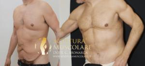 addominoplastica e scultura muscolare