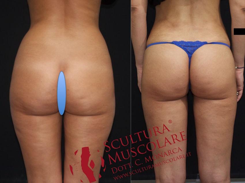 gluteo scultura muscolare