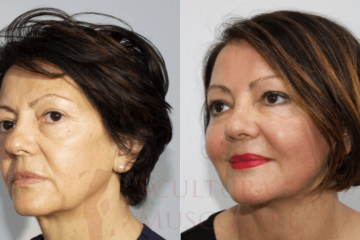 Lifting del viso o Face-lift