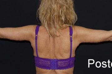 Lifting braccia o Brachioplastica