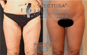 lifting gambe con cicatrice inguinale