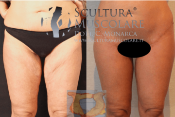 Lifting delle Gambe