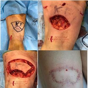 melanoma arto inferiore