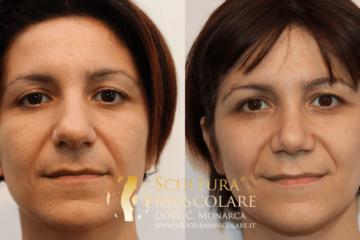 Rinoplastica e chirurgia funzionale del naso