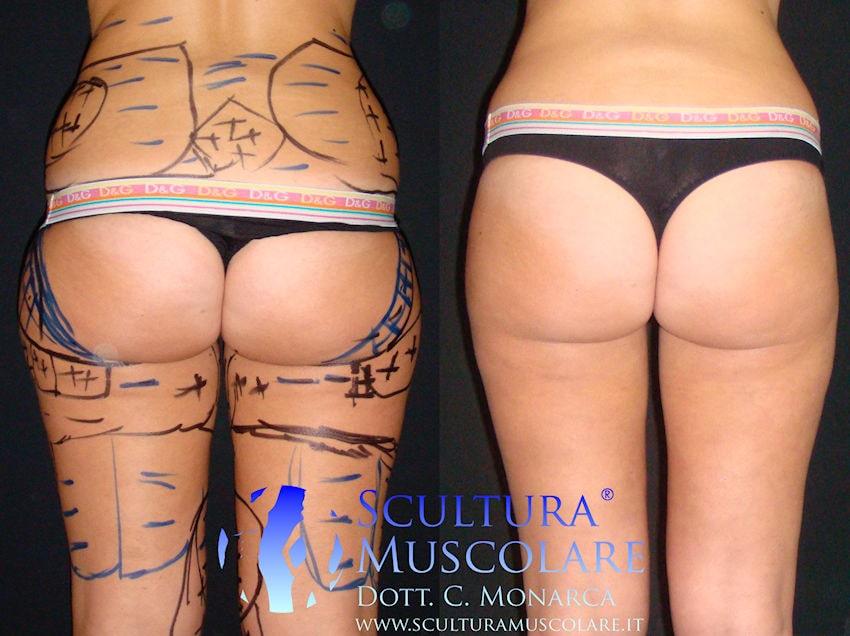 intervento scultura gluteo