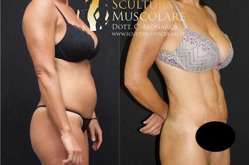 scultura muscolare addome donna
