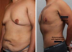 obeso ginecomastia