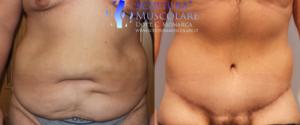 addominoplastica giovane obeso