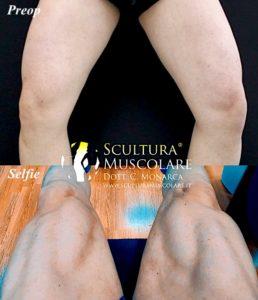Scultura delle gambe